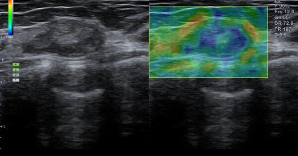 Breast nodule in Elastography