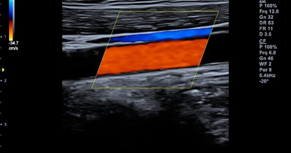 Carotid artery and jugular vein in Color Flow Mode