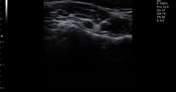 Cervical spine in 2D Mode