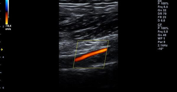 Peripheral artery in Color Flow Mode