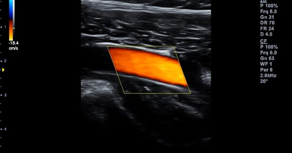 Peripheral artery of lower extremity in Color Flow Mode