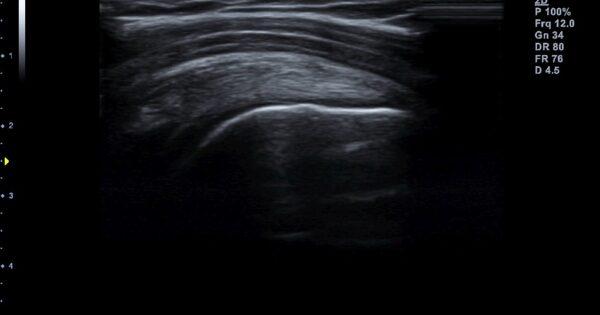 Shoulder in 2D Mode (2)