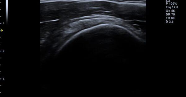 Shoulder in 2D Mode