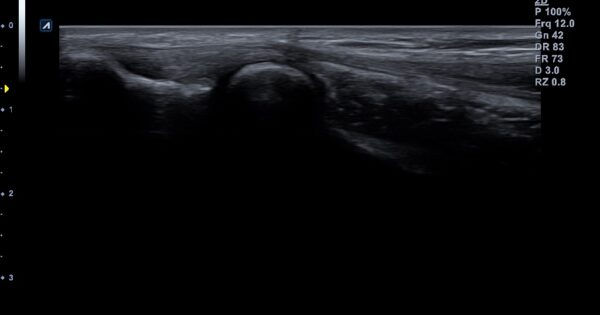 Superficial area of elbow in 2D Mode