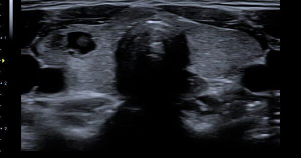 Thyroid nodule in 2D Mode