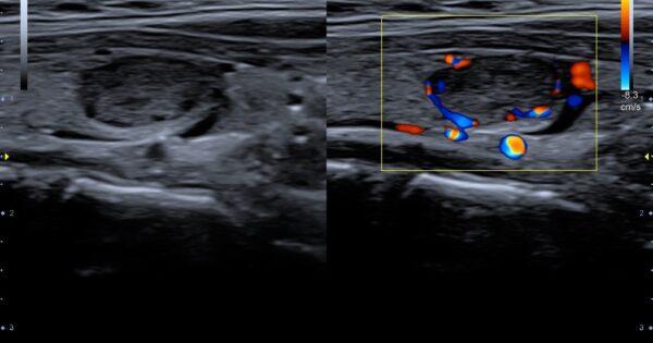 Thyroid nodule in Dual Live Mode