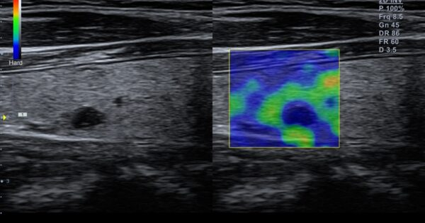 Thyroid nodule in Elastography