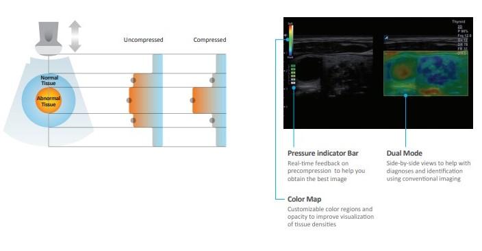 La elastografía en fisioterapia