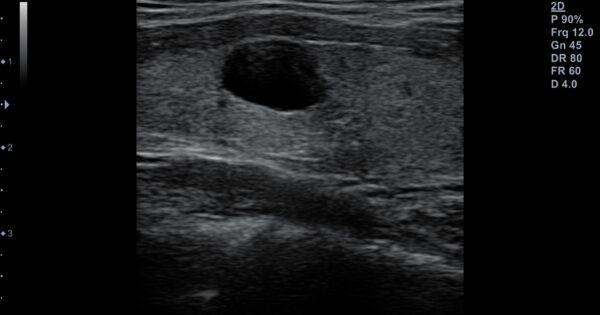 20140807_L3-12T_thyroid LT lobe_v1.0