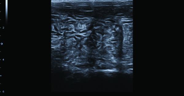 Bowel in 2D