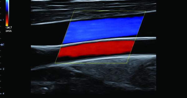 Carotid artery and jugular vein in Color