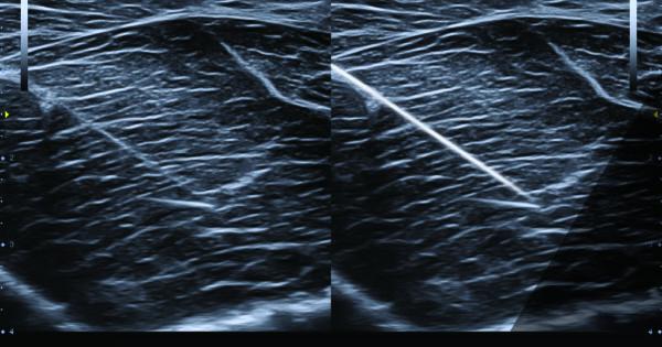 (Needle Vision TM Plus)