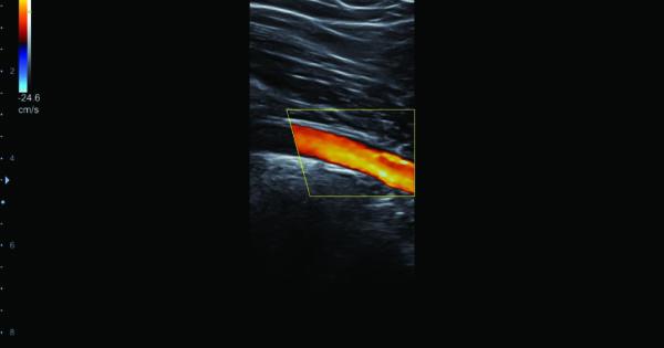 Popliteal artery in Color