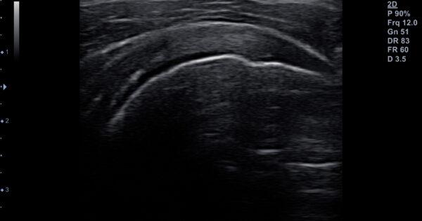 Shoulder - supraspinatus