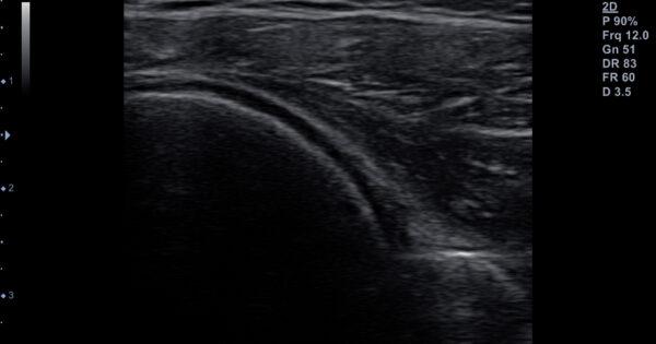 shoulder-posterior side